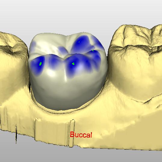 Técnicas digitales CAD / CAM para Higienistas Dentales y Auxiliares